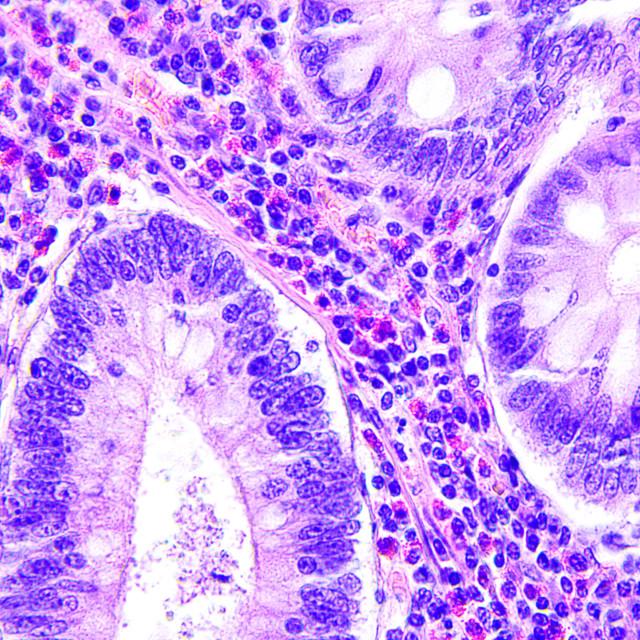 """Colon cancer microscopic photograph"" stock image"