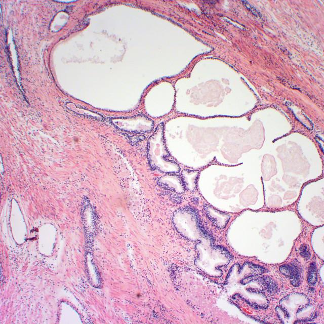 """Prostate microscopic photograph zoom x40"" stock image"