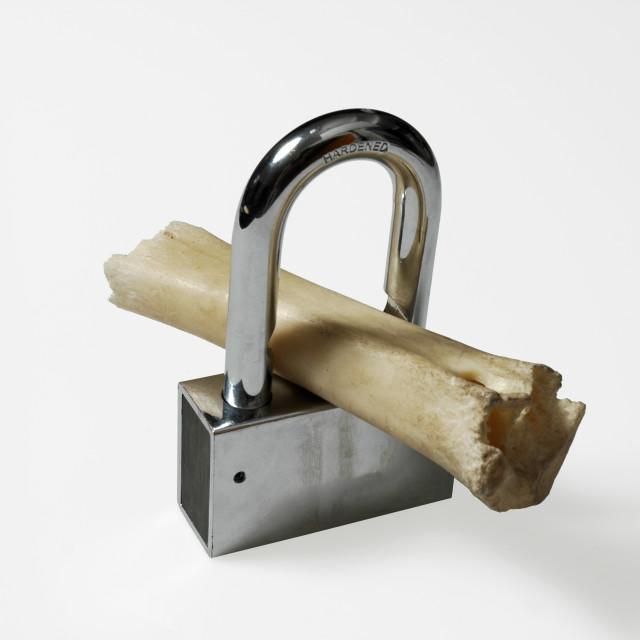 """osteoporosis Lock and bone"" stock image"