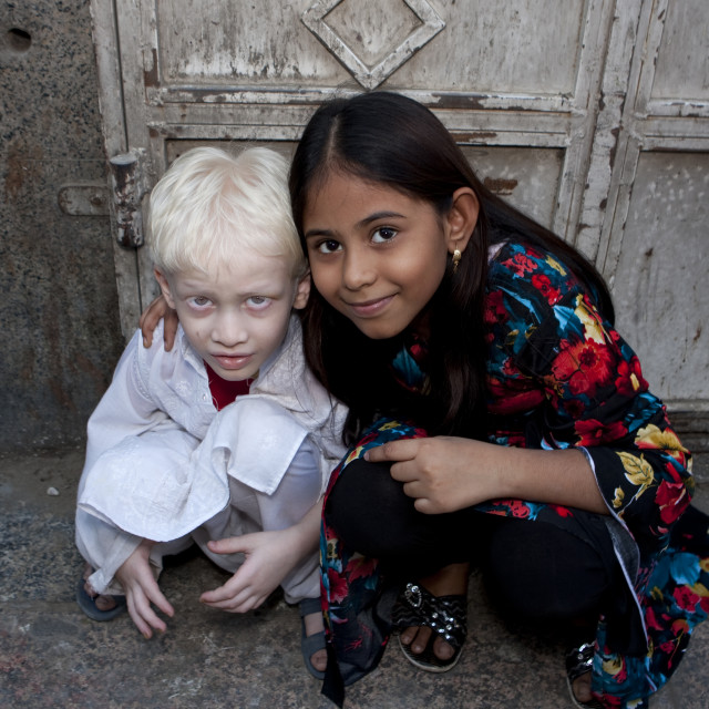 """Albino indian boy in jeddah, Saudi arabia"" stock image"