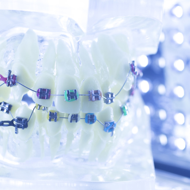 """Dental teeth brackets aligners"" stock image"