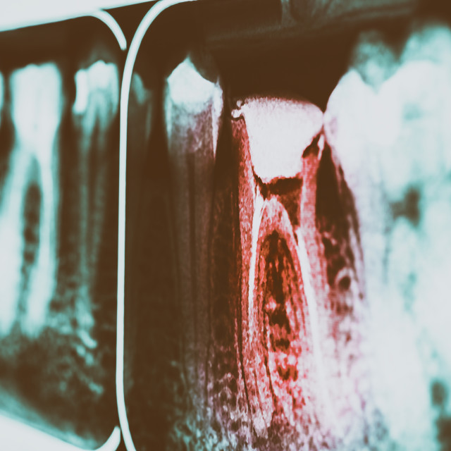 """""""Pain Of Tooth Decay On Teeth X-Ray"""" stock image"""