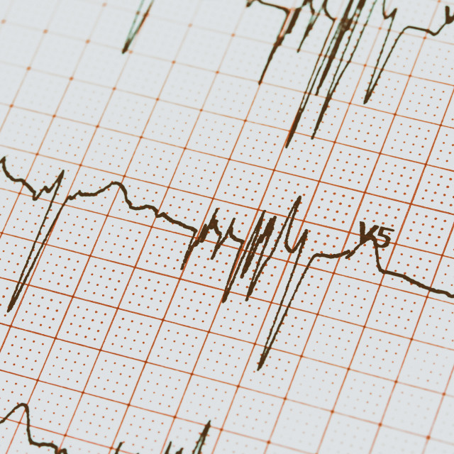 """Extrasystoles On Electrocardiogram"" stock image"