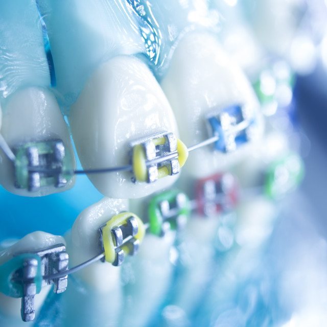 """Dental teeth metal brackets"" stock image"
