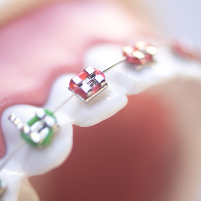 """Cosmetic dental metal brackets"" stock image"