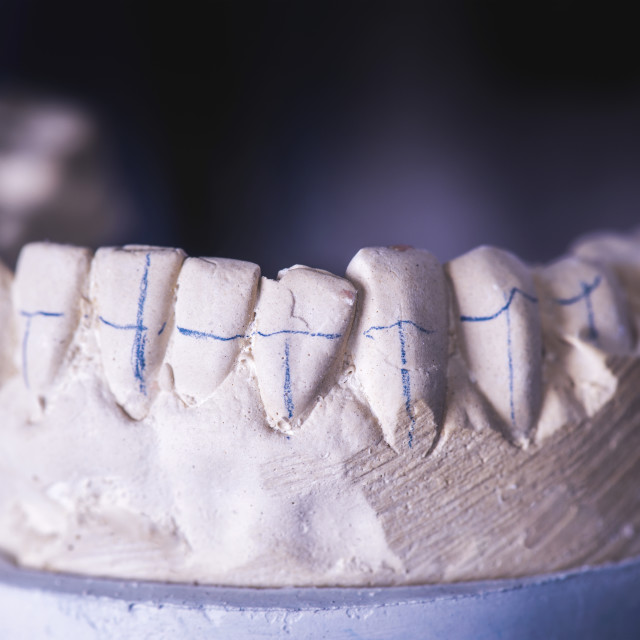 """Dental prosthesis with markings"" stock image"