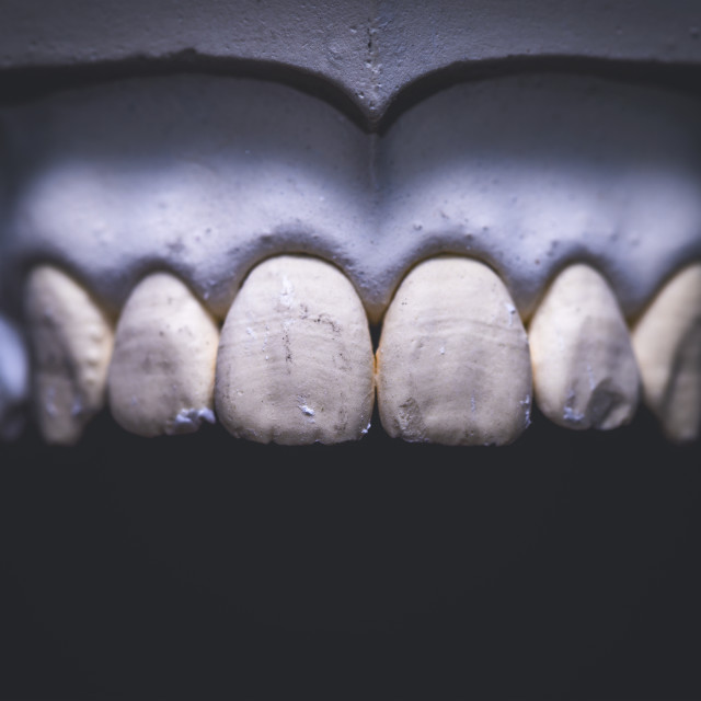 """Dental prosthesis"" stock image"