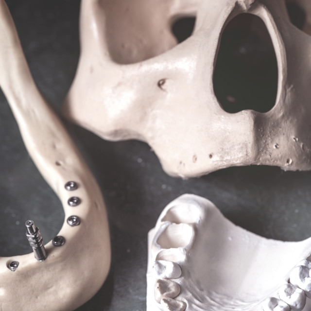 """Dental prosthesis and jaw with skull"" stock image"
