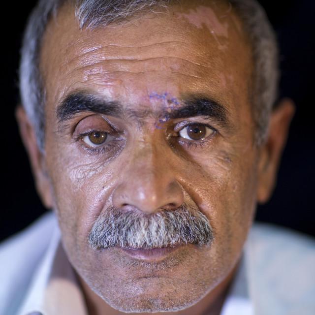 """Kurdish Wounded Veteran, Sulaymaniyah, Kurdistan, Iraq"" stock image"
