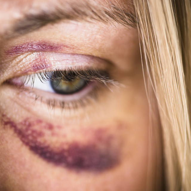 """Portrait of woman with black eye"" stock image"