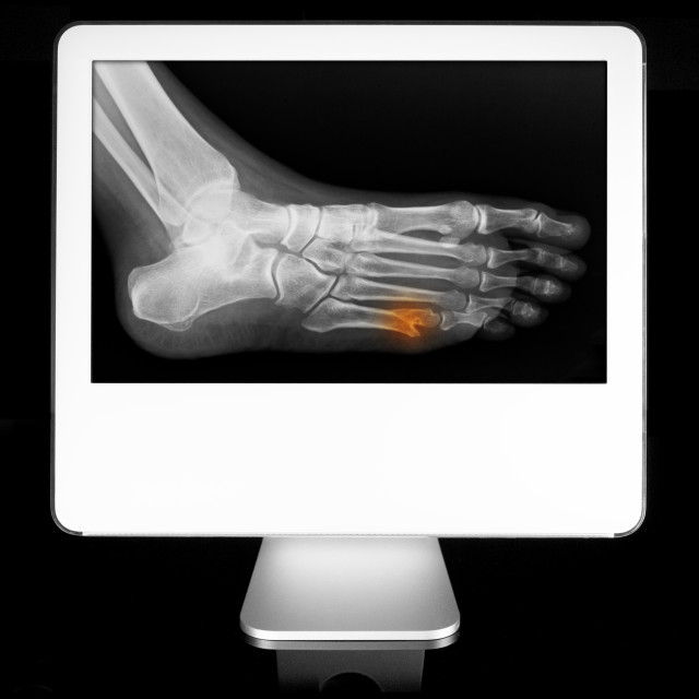 """""""Broken toe appearing on diagnostic monitor"""" stock image"""