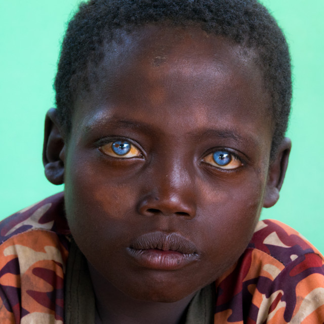 """Ethiopian boy called Abushe with blue eyes suffering from Waardenburg..."" stock image"