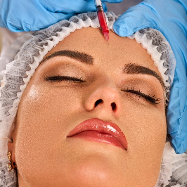 """Filler injection for forehead face. Plastic aesthetic facial surgery."" stock image"
