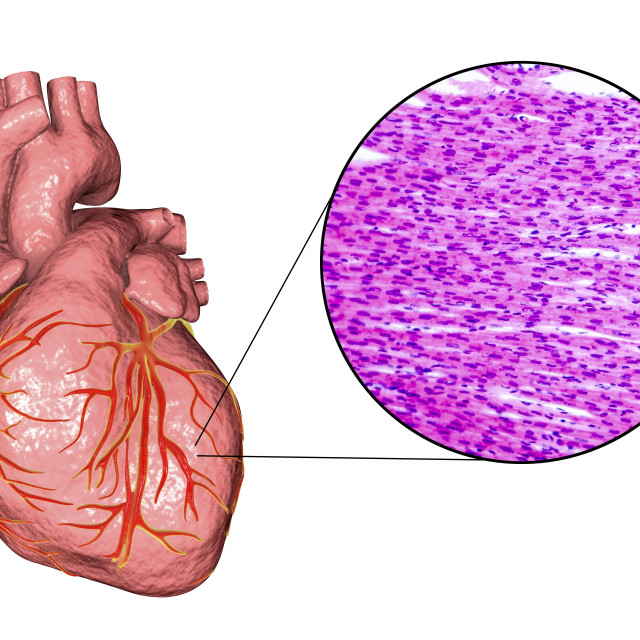"""""""Human heart and cardiac muscle, composite image"""" stock image"""