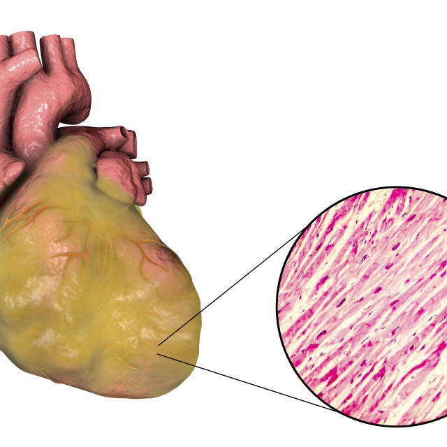 """""""Heart with left ventricular hypertrophy, composite image"""" stock image"""