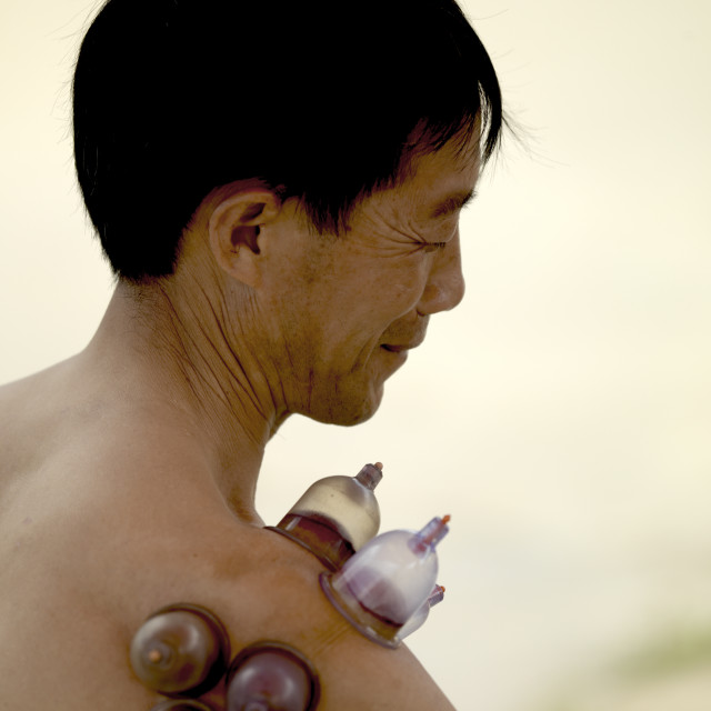 """""""Vacuum Cupping On The Shoulder Of A Man, Menglun, Yunnan Province, China"""" stock image"""