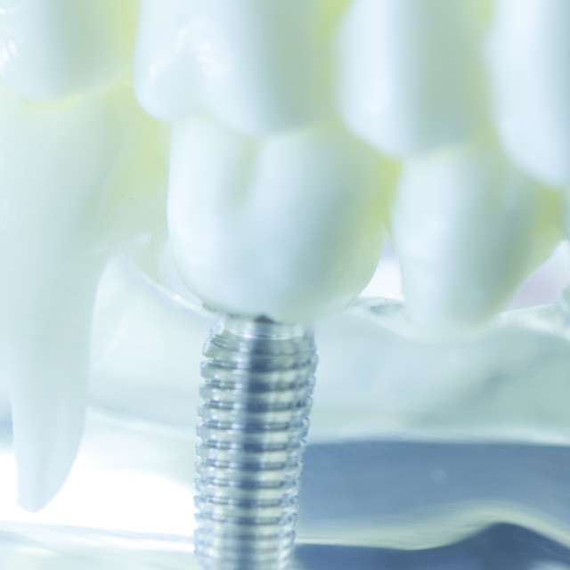 """Dental titanium tooth implant"" stock image"