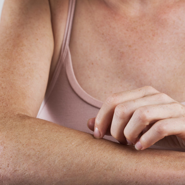 """Woman scratching arm"" stock image"