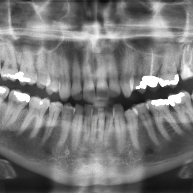 """""""Dental X-ray"""" stock image"""