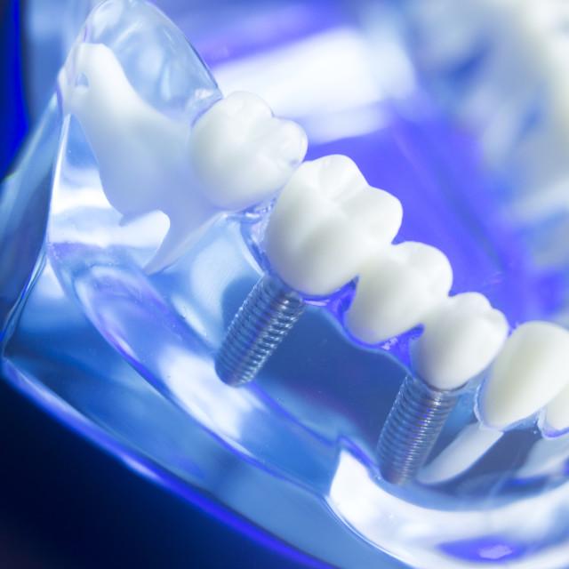 """Dental teeth decay model"" stock image"