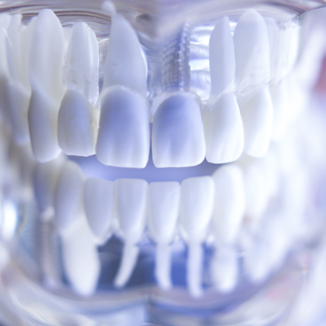 """Dentsts dental tooth implant"" stock image"