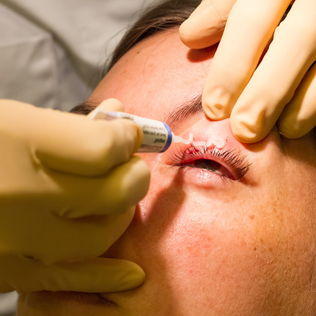 """""""Healthcare concept - Medicine on eye - Chalazion during eye examination and..."""" stock image"""