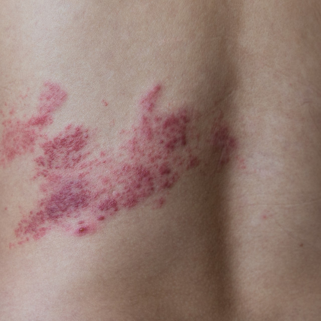 """close up on herpes zoster on the back"" stock image"