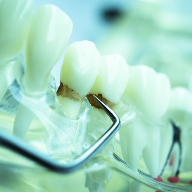 """""""Dentist cleaning teeth"""" stock image"""