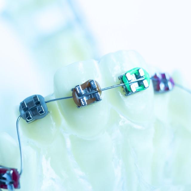 """""""Dental metal brace teeth model"""" stock image"""