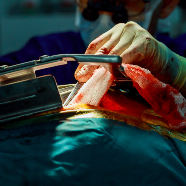 """""""cardiac Surgery. Bloody surgical operation. wound to the chest at cardiac..."""" stock image"""