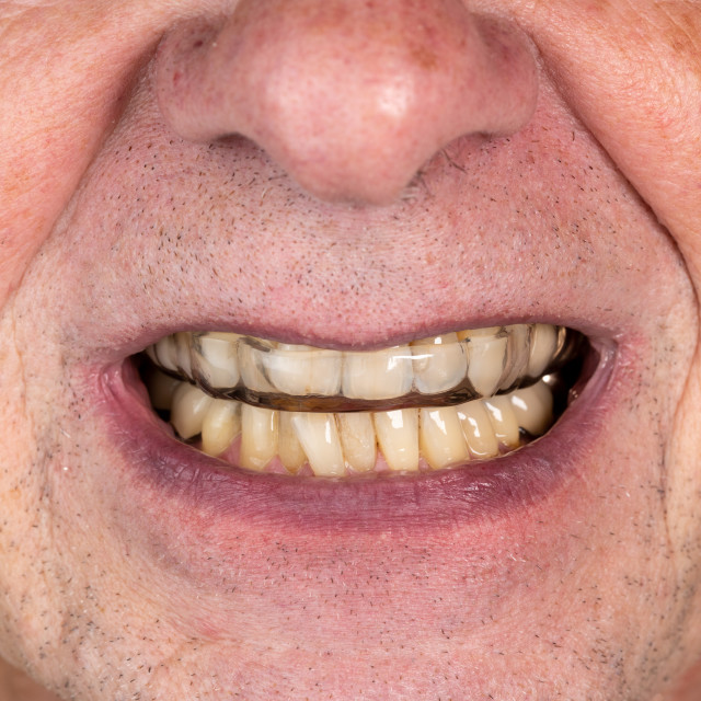 """Senior man putting a night guard onto crooked teeth"" stock image"