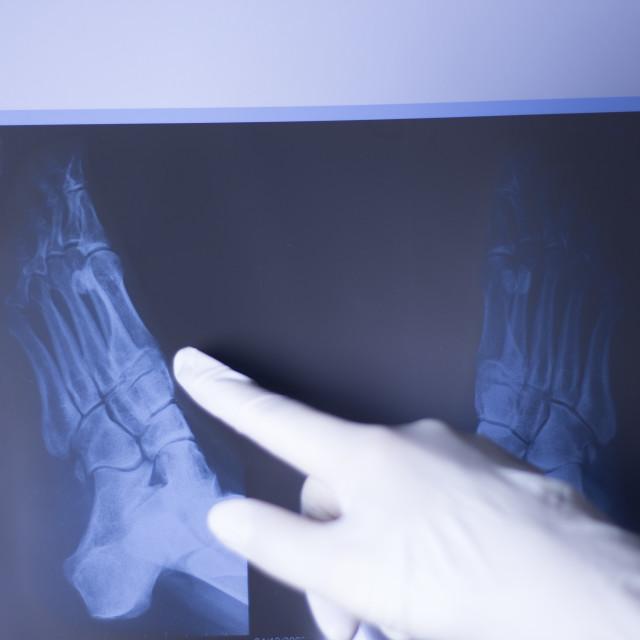 """Medical xray foot scan"" stock image"