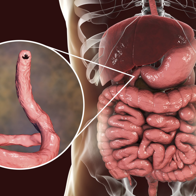 """Hookworm, illustration"" stock image"