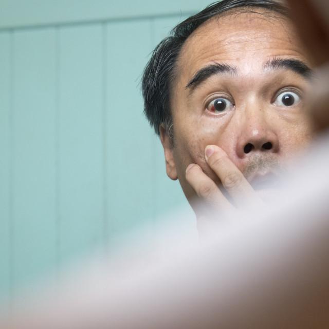 """Adult Man Checking Eye Redness"" stock image"