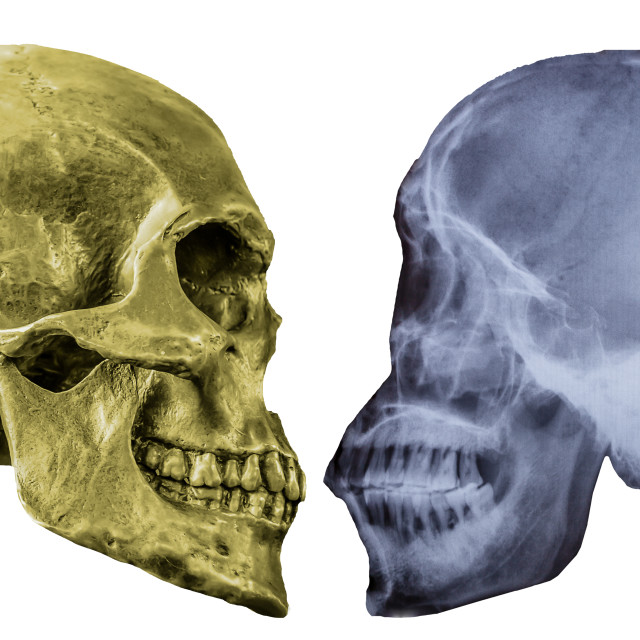 """Human Skull and Xray of Human Skull"" stock image"