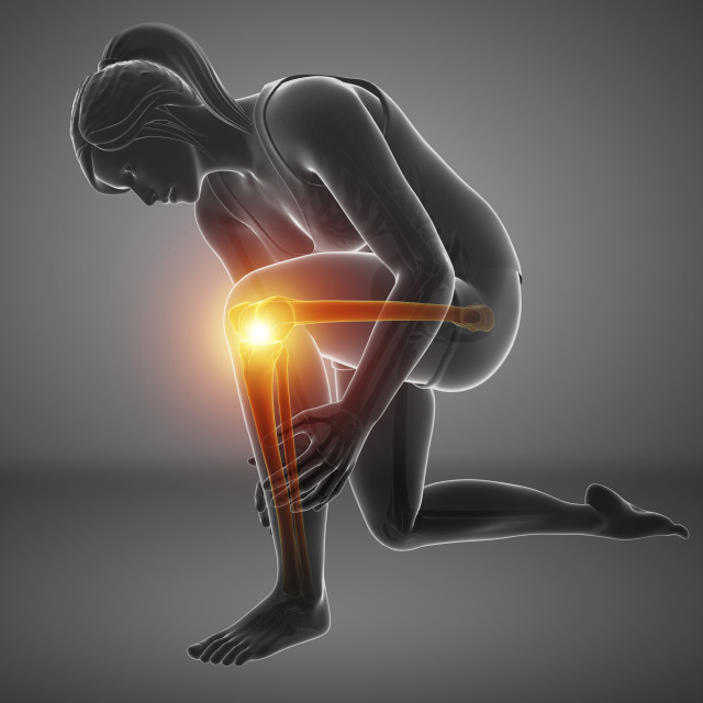 """Woman with knee pain, illustration"" stock image"