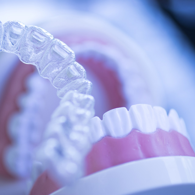 """Invisible dental teeth aligners"" stock image"