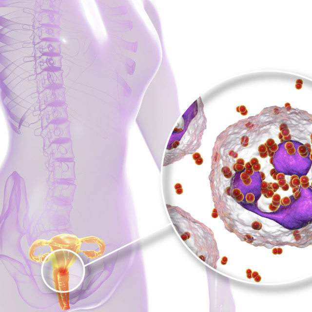 """""""Gonorrhoea infection in female, illustration"""" stock image"""