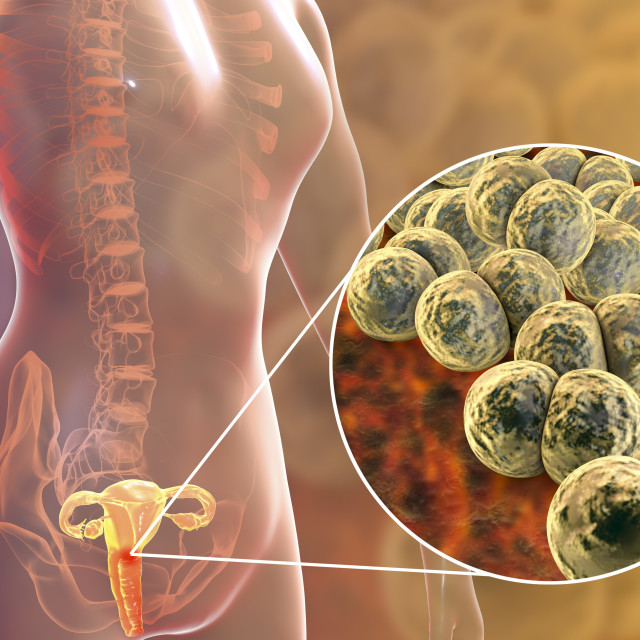"""Gonorrhoea infection in female, illustration"" stock image"