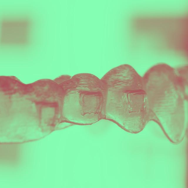 """Invisible bracket teeth aligners"" stock image"