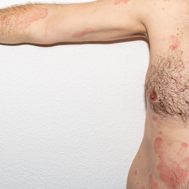 """Allergy. Histamine. Reaction. Intolerance. Health"" stock image"