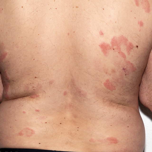 """Allergy. Reaction. Intolerance. Health. Histamine"" stock image"
