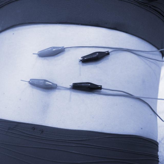 """""""Dry needling EPI needle"""" stock image"""