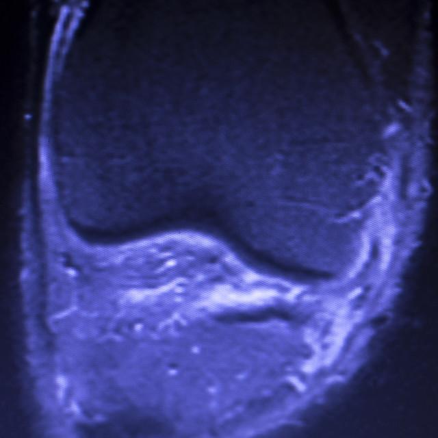 """MRI knee meniscus tear scan"" stock image"