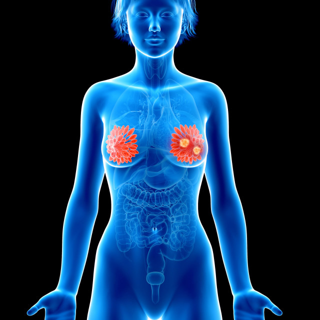 """""""Illustration of mammary glands cancer"""" stock image"""