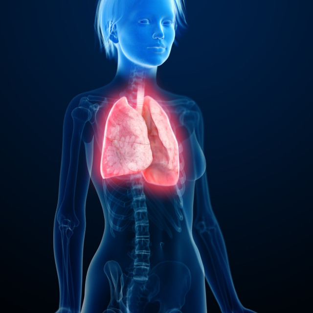 """""""Illustration of an inflamed lung"""" stock image"""