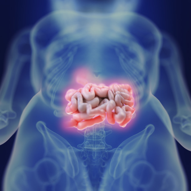 """""""Illustration of an inflamed intestine"""" stock image"""