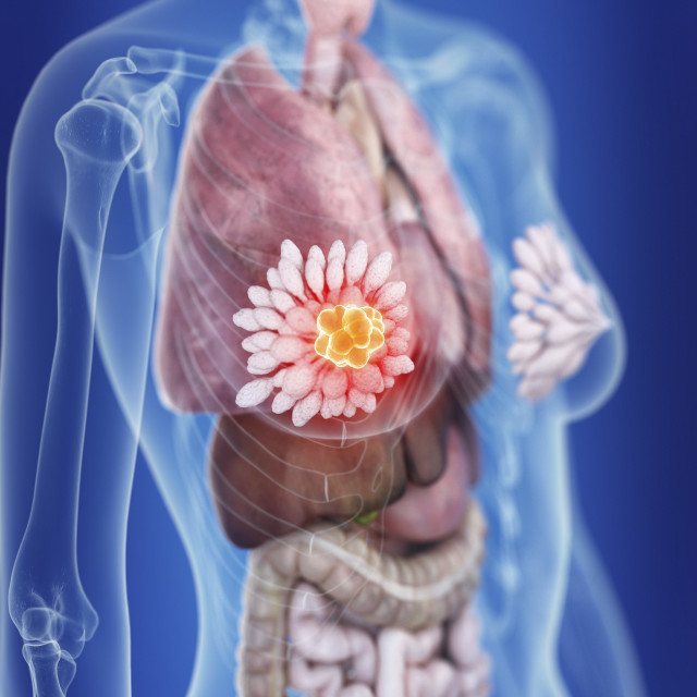 """""""Illustration of a woman's mammary glands cancer"""" stock image"""
