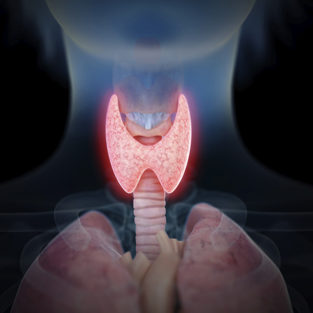 """""""Illustration of an inflamed thyroid gland"""" stock image"""