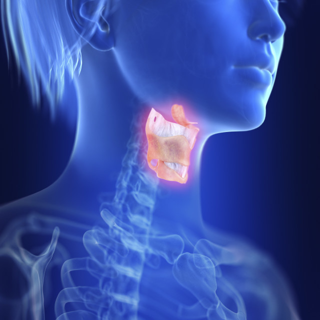 """""""Illustration of an inflamed larynx"""" stock image"""